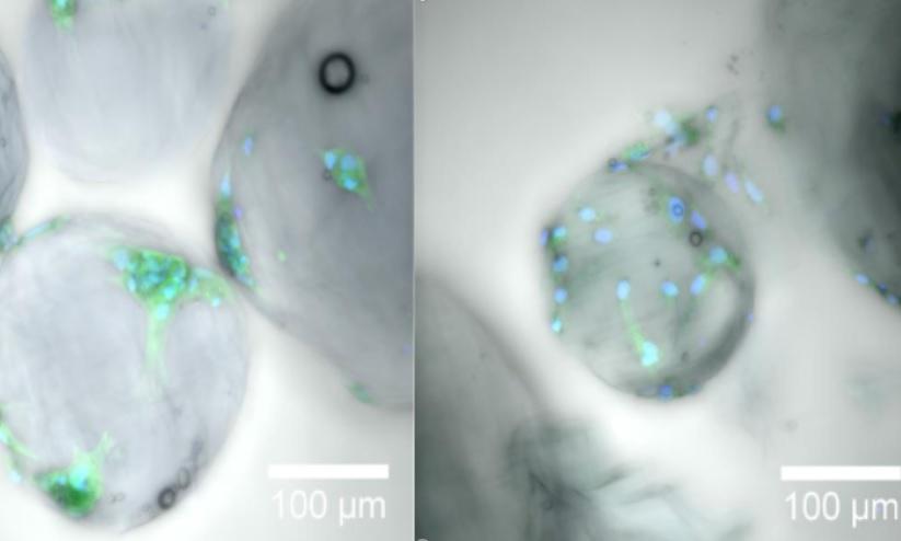 Des gouttes de gel de la taille d'un micromètre peuvent fournir l'architecture extracellulaire nécessaire, en médecine régénérative, à la croissance et à la prolifération des cellules au cours de la cicatrisation (Visuel 2021 KAUST ; Gustavo Ramírez Calderón.)