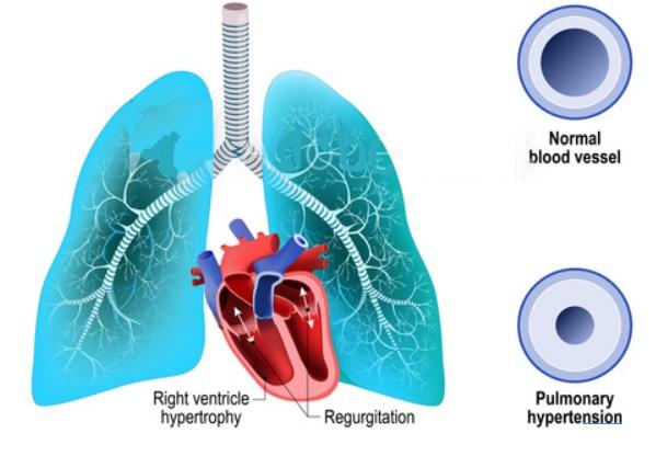 Des bactéries intestinales spécifiques peuvent être associées à une hypertension artérielle pulmonaire