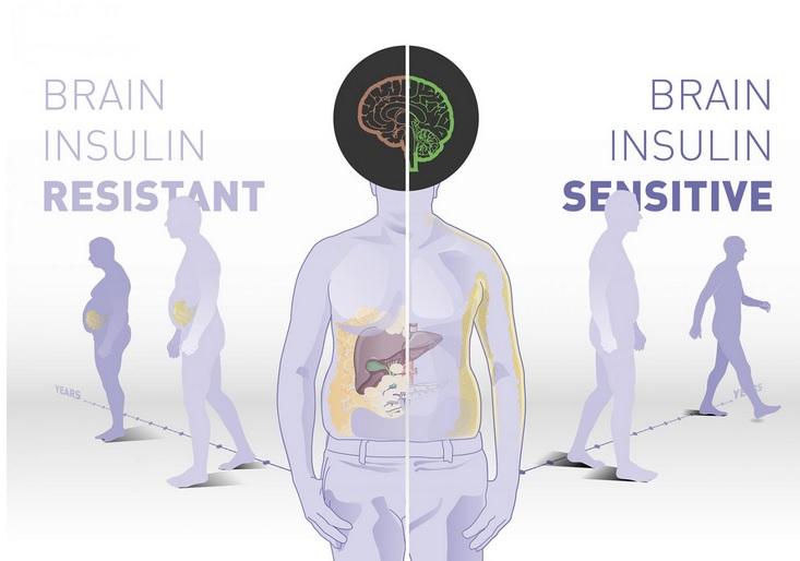 Les personnes ayant une sensibilité cérébrale élevée à l'insuline bénéficient beaucoup plus d'une intervention sur le mode de vie comportant un régime alimentation riche en fibres et la pratique de l'exercice