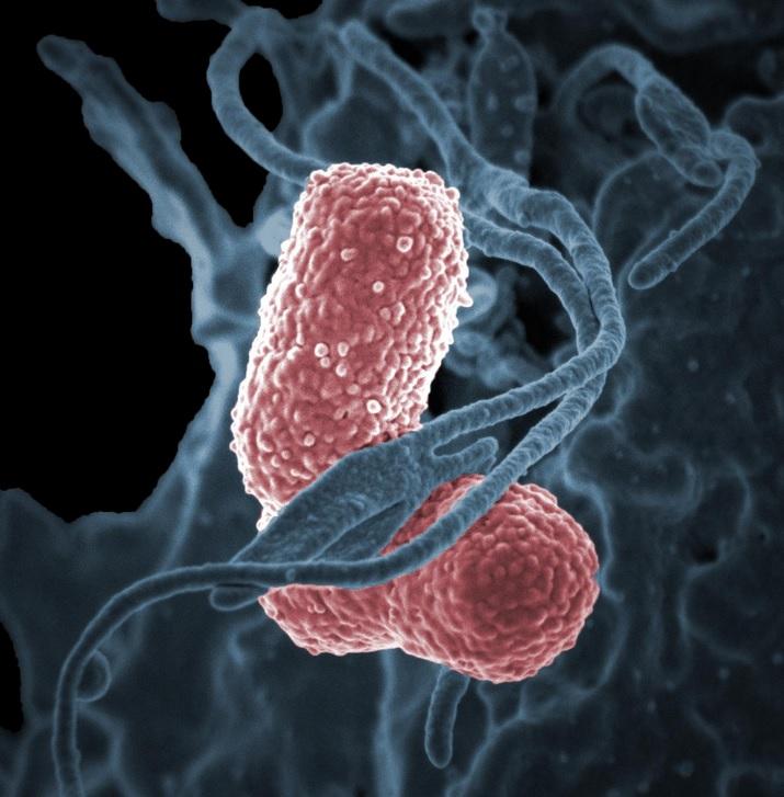 La bactérie K. pneumoniae ST258 fait partie de la liste des bactéries les plus résistantes, selon les CDC américains (Visuel NIAID)