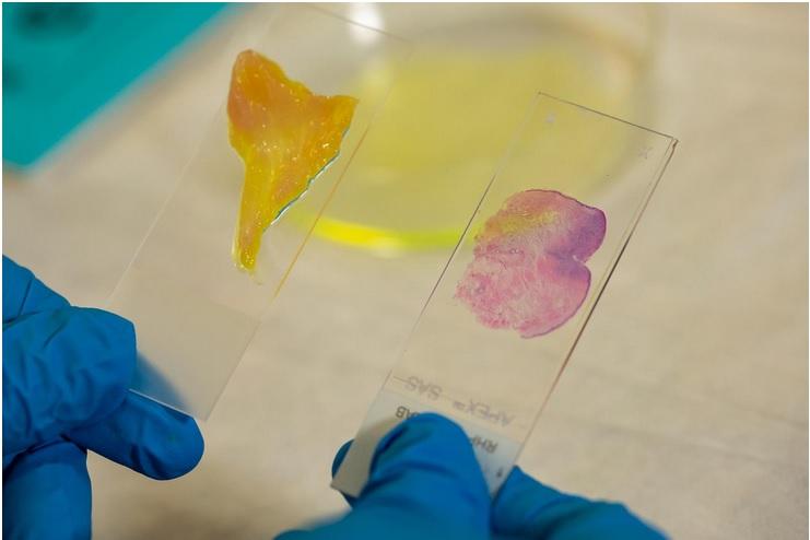 Combiner à la microscopie un système d'apprentissage en profondeur, un type d'application de l'intelligence artificielle (IA), permet une vérification des marges du cancer en quelques minutes seulement (Visuel  Brandon Martin/Rice University)