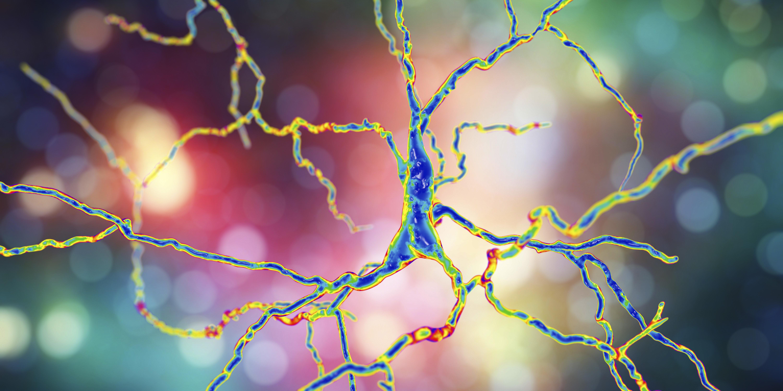 Une nouvelle immunothérapie contre « Alzheimer » cible spécifiquement les oligomères bêta-amyloïdes (Visuel AdobeStock_193981837)