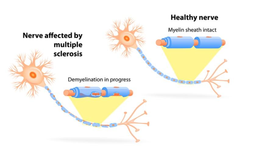 La myéline et les fibres nerveuses sont endommagées dans la sclérose en plaques, ralentissant ou bloquant les signaux électriques nécessaires pour voir, mobiliser les muscles, ressentir des sensations ou réfléchir (Schéma CDC)