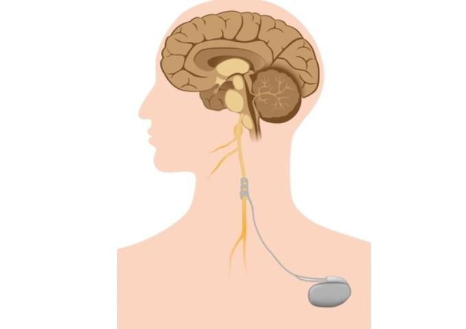 Cette étude confirme la réduction significative des symptômes de la polyarthrite rhumatoïde, avec la stimulation du nerf vague.