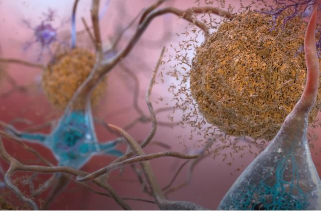 Tau dévore l'ARN et perturbe l'ARN cellulaire (Visuel Université du Colorado à Boulder)