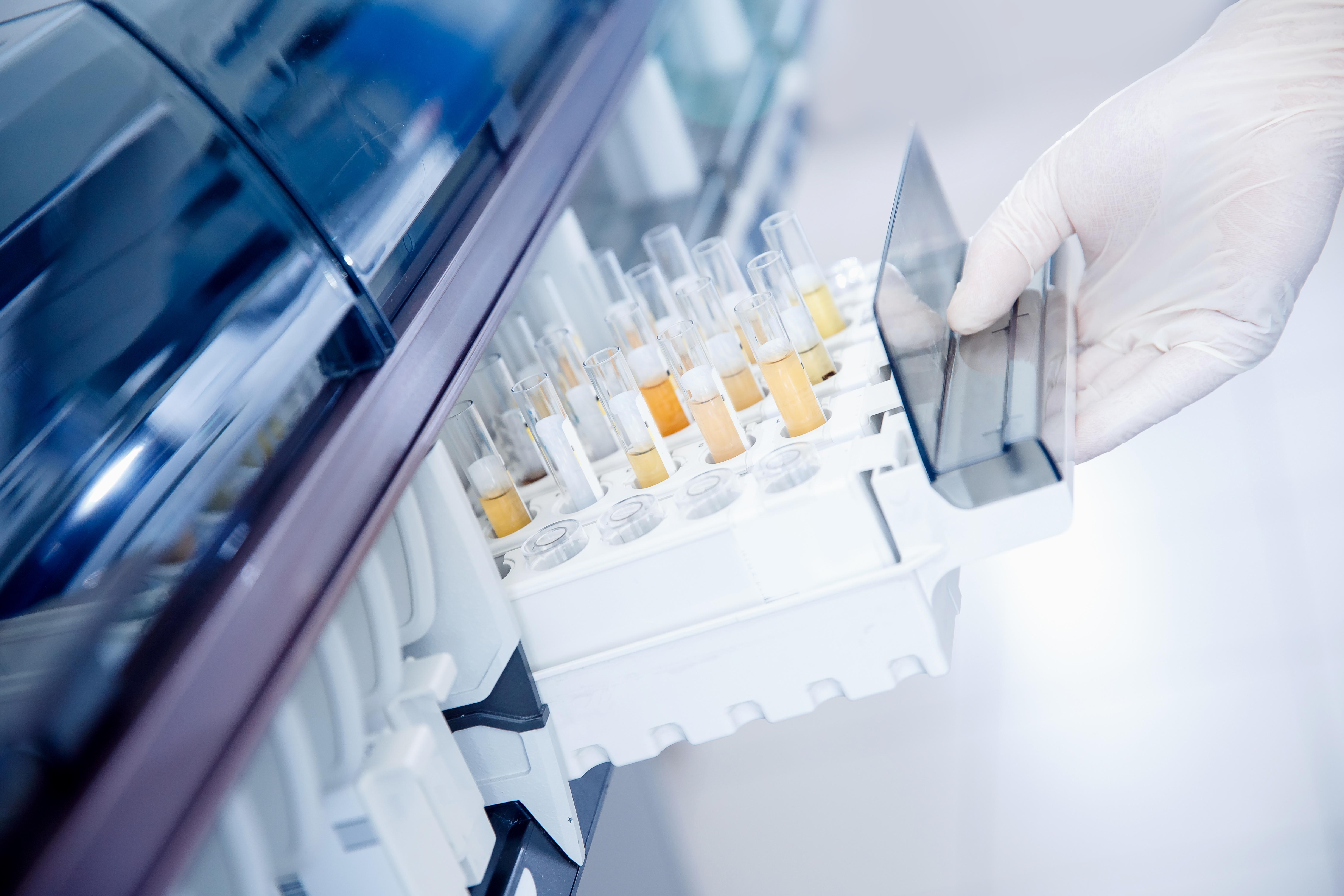 L'analyse de la variation du nombre de copies d'ADN (CNV) dans les cellules exfoliées présentes dans l'urine apporte une meilleure sensibilité et une spécificité similaire dans la détection du carcinome urothélial par rapport à la cytologie urinaire (Visuel Adobe Stock 334065984)