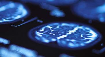 L'imagerie par tenseur de diffusion reste l'outil diagnostique de référence