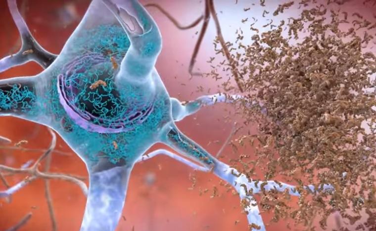 Il existe une corrélation entre certaines espèces de bactéries et la présence des agrégats toxiques caractéristiques de ces maladies neurodégénératives (Visuel NIH)