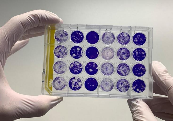 COVID : Seule une toute petite proportion de la population semble avoir développé des anticorps au cours de la première vague épidémique (Visuel Fotolia)