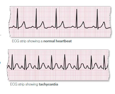 La fibrillation auriculaire (FA) est une affection cardiaque qui provoque un rythme cardiaque irrégulier et souvent anormalement rapide.
