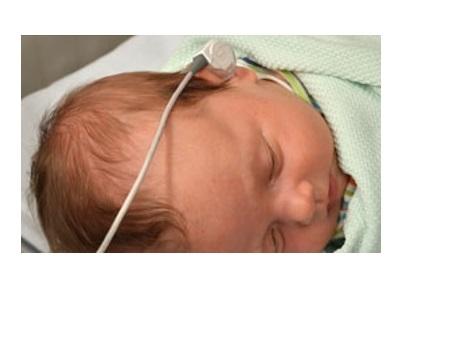 On estime qu'il existe plus de 400 formes de déficience auditive génétique