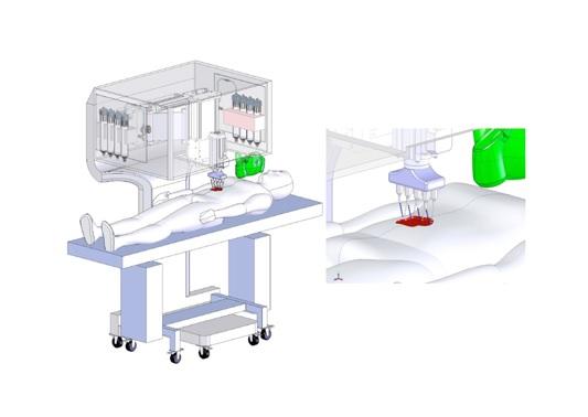 Une bio-imprimante de peau mobile, positionnable « in situ » soit au chevet du patient et qui, à partir de ses propres cellules (autologues) de peau va pouvoir imprimer de la peau, couche par couche, pour initier le processus de cicatrisation