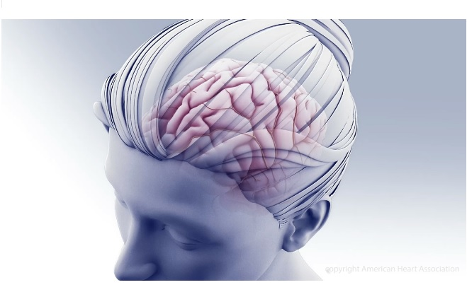 La thrombose des sinus veineux cérébraux (CVST) est caractérisée par la formation de caillots sanguins dans les veines du cerveau (Visuel AHA/ASA)