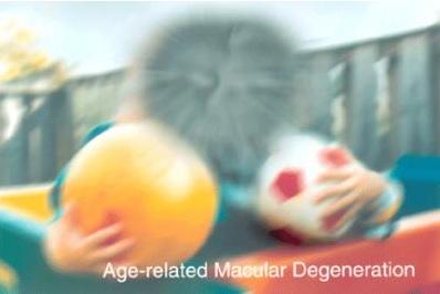Les orthoptistes sont plus susceptibles de recommander des suppléments nutritionnels dans la DMLA