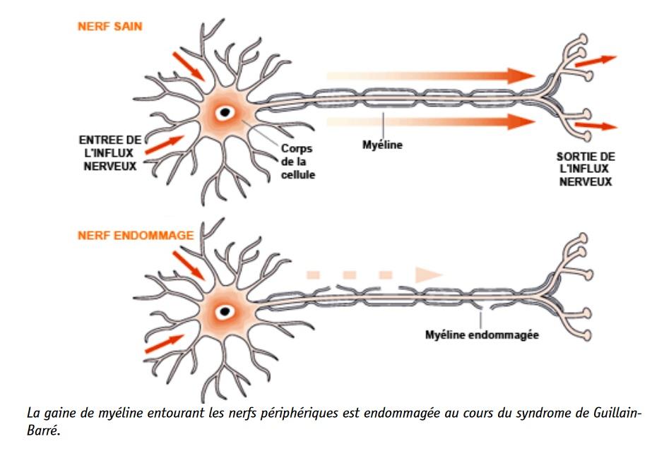Une association forte entre une infection au COVID-19 et le syndrome de Guillain-Barré. apparaît peu mprobable (Schéma Orphanet)