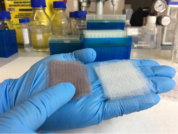 Toute insertion d'un implant dans le corps d'un patient s'accompagne d'un risque de contamination bactérienne pendant la chirurgie et de la formation d'un biofilm.