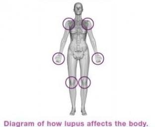 Le lupus touche en majorité des femmes