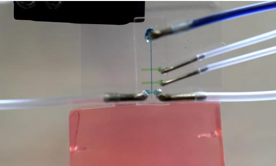 La technique permettra d'améliorer les thérapies qui reposent sur des électrodes pour détecter les signaux neuronaux et/ou déclencher des stimulations chez les patients souffrant d'épilepsie et d'autres conditions.