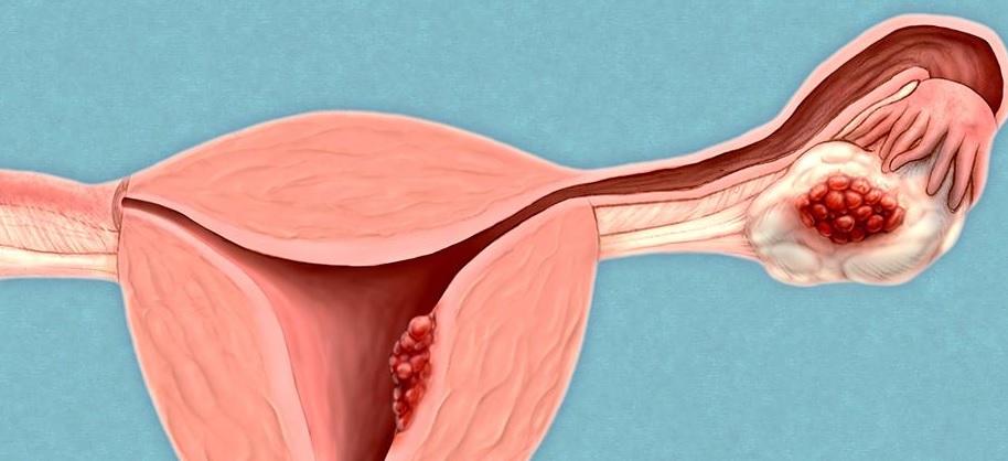 Le cancer de l'ovaire reste l'un des cancers les plus meurtriers car il n'existe aujourd'hui aucune méthode de dépistage et qu'il est souvent diagnostiqué (trop) tardivement.
