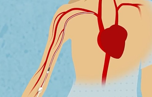 Les dispositifs intraveineux connus sous le nom de PICC (pour peripherally inserted central catheter) devraient être réservés pour une utilisation à long terme