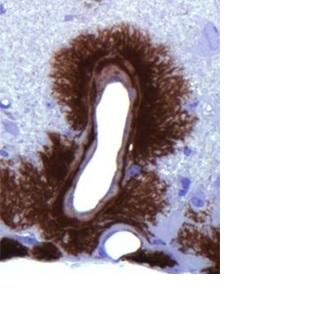 La protéine prion PrPC est la molécule responsable, dans sa version modifiée, de syndromes à prions tels que la maladie de Creuzfeldt Jacob