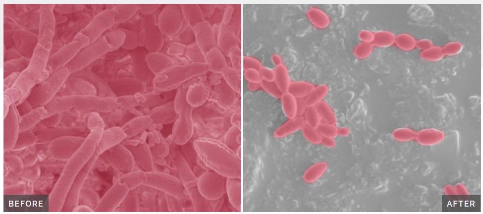 Un probiotique en instance de brevet pourrait dissiper les biofilms de la maladie de Crohn et affaiblir les communautés intestinales microbiennes persistantes qui peuvent aggraver les symptômes