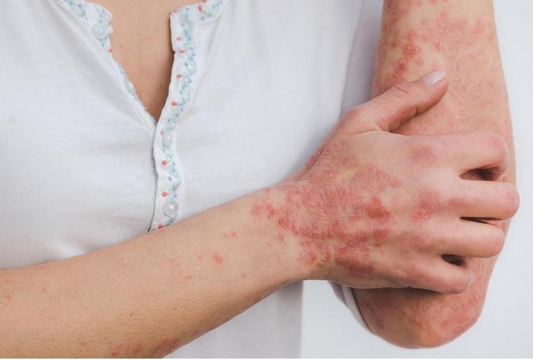 De nombreuses études ont montré que les patients atteints de psoriasis encourent un risque accru de maladies cardiovasculaires (Visuel Estzer Miller pour le Chinese Medical Journal)