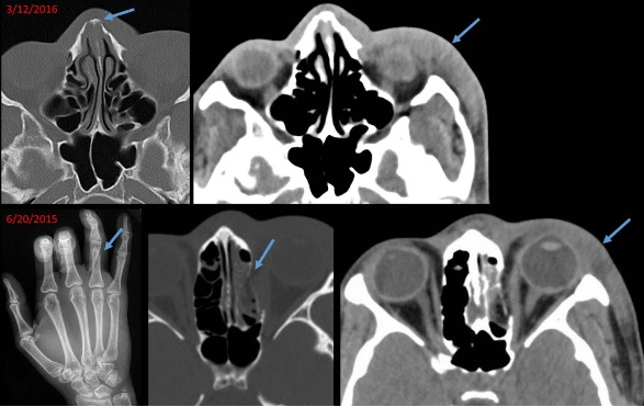 Les auteurs définissent ainsi « des modèles communs de blessures » dont des lésions des tissus mous, les fractures des membres fréquemment localisées aux extrémités supérieures distales et suggérant des blessures liées à des tentatives défensives.