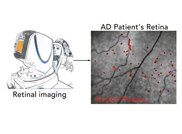 Les patients atteints de la maladie d'Alzheimer présentent des dépôts de protéines ß-protéines amyloïdes (Aβ) situés à la périphérie de la rétine