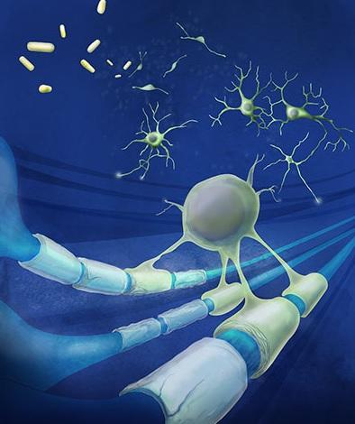 Les patients atteints de lésion cérébrale traumatique et de SEP partagent un mécanisme de fatigue cognitive.