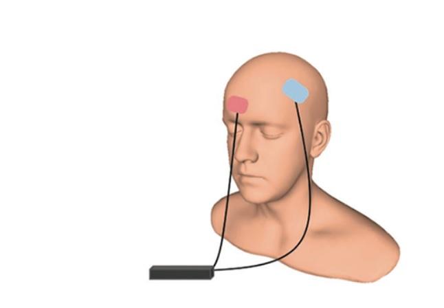 L'utilisation d'un courant électrique pour stimuler cette zone -par stimulation transcrânienne à courant continu (tDCS)- améliore la capacité des patients à se souvenir.