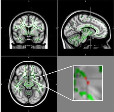 Chez les adolescents obèses, la connectivité est perturbée dans les zones du cerveau impliquées dans la régulation de l'appétit