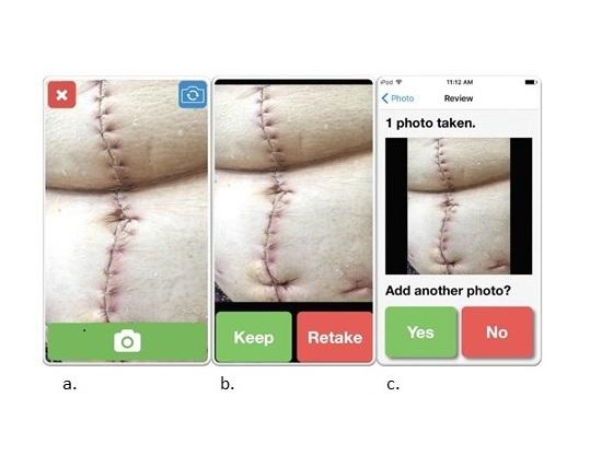 « WoundCheck » est une application iOS qui permet aux patients de transmettre des images de plaies chirurgicales quotidiennes de leur domicile pour un suivi de cicatrisation par un soignant ou un clinicien.