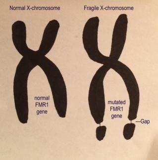 Chez les patients « X fragile », le gène FMR1, présent sur le chromosome X, est complètement désactivé