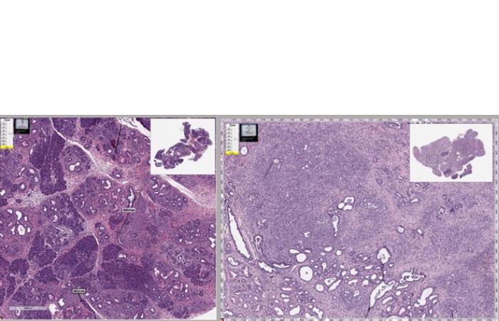 Le mébendazole agit de manière similaire dans le cancer du pancréas en détruisant la structure des cellules cancéreuses et en réduisant l'inflammation (Visuel Tara Williamson).