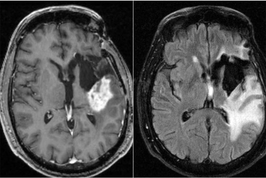 Images IRM du cerveau d'un participant à un essai clinique évaluant la chronothérapie (tumeur représentée par la zone blanche sur l'image de gauche. La grande zone blanche de l'image de droite est un gonflement associé à la tumeur) (Visuel Washington University School of Medicine)