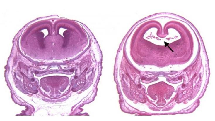 Ces 2 substances interagissent au niveau cellulaire en perturbant la signalisation entre molécules et cellules qui contrôlent la croissance et le développement