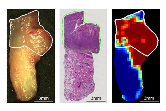 Repérage de la tumeur par imagerie hyperspectrale et intelligence artificielle (à droite) vs méthodes de microscopie actuelles (au centre)