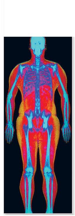Les chercheurs ont numérisé la densité osseuse et la composition corporelle par absorptiométrie biphotonique à rayons X