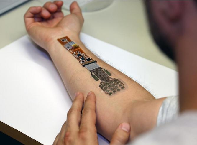 Ce nouveau matériau de traitement des plaies en 3D destiné à la surveillance du processus de cicatrisation, à ce stade à l'hôpital.