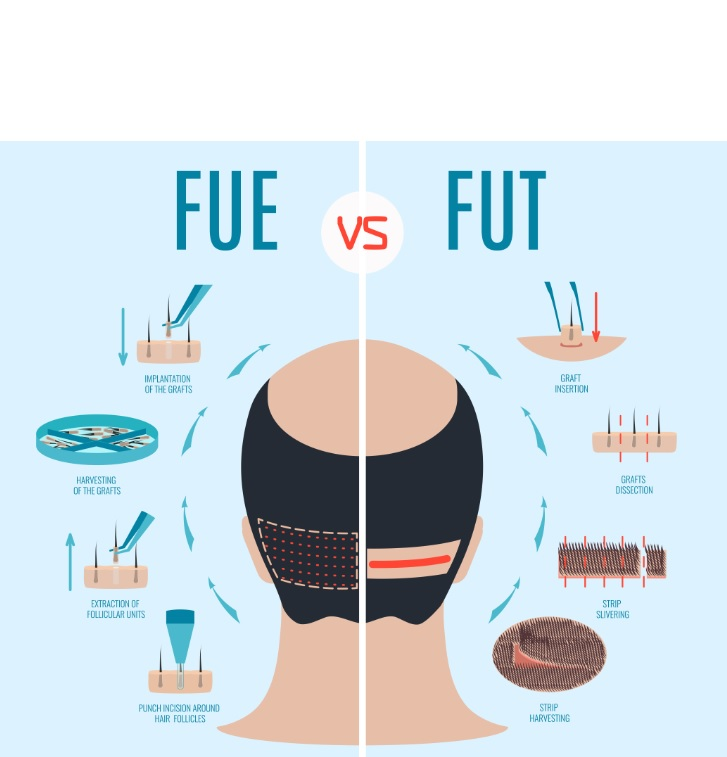 Plusieurs études ont documenté la technique FUE comme « le dernier progrès technique » en matière de restauration chirurgicale des cheveux.
