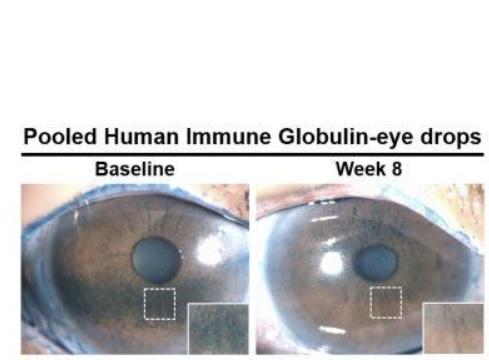 Les patients traités avec des gouttes oculaires à base d'anticorps bénéficient d'une réduction du nombre de zones sèches ou lésions cornéennes