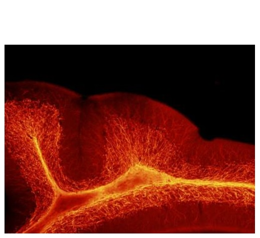 Sans ALLO, les chercheurs constatent une augmentation de l'épaisseur de la myéline, la couche isolante riche en lipides qui protège les fibres nerveuses.