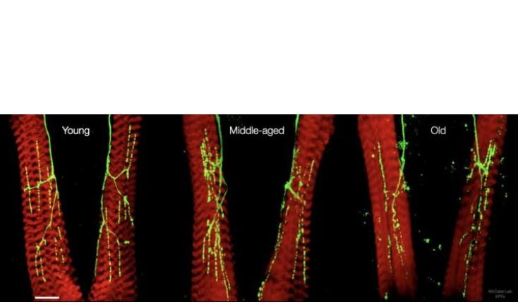 « La capacité motrice diminue chez tous les animaux vieillissants, y compris les humains, c'est donc une excellente surprise de voir qu'il est possible de freiner ce processus » (Visuel © Laboratory of Neural Genetics and Disease / EPFL)