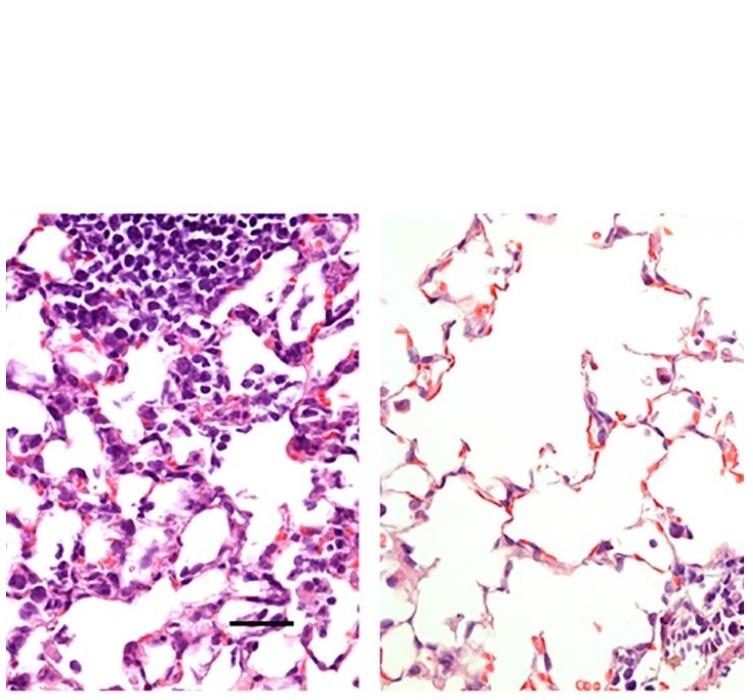 Tissu pulmonaire : vaccination par injection intra-musculaire à gauche et par voie nasale à droite (Visuel Hassan et al.)