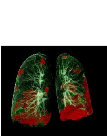 Tomodensitométrie d'un patient COVID-19 montrant les dommages aux poumons en rouge (Visuel Gerlig Widmann and team, Department of Radiology, Medical University of Innsbruck)
