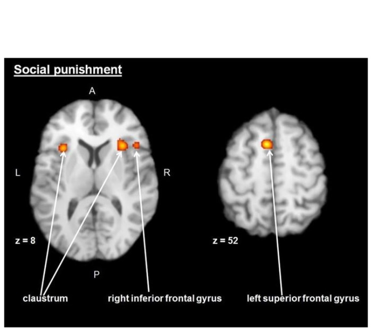 Les zones du claustrum bilatéral, du gyrus frontal supérieur gauche et frontal intérieur droit sont toujours activés lors de cette fonction de punition sociale.