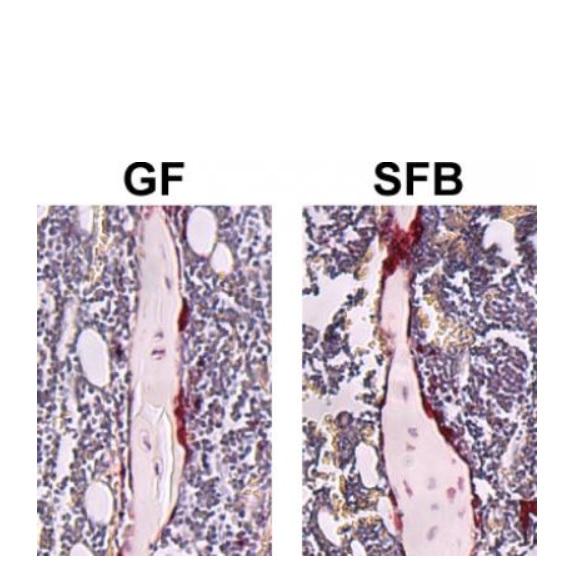 La présence de SFB dans un microbiote complexe entraîne une réduction du volume osseux trabéculaire