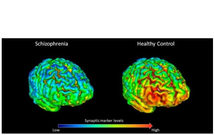 Les participants en bonne santé ont, en moyenne des niveaux plus élevés (en jaune-rouge sur visuel) de protéine « de synapse » SV2A que les patients atteints  (à gauche).
