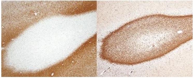 Extrémité « démyélinisée » d'une fibre nerveuse à gauche sur visuel